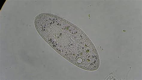 Live In A Drop From Pond (green Cells) Under Microscope